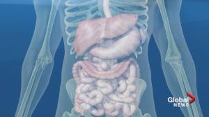New study to see if diet can help people with crohn's and colitis