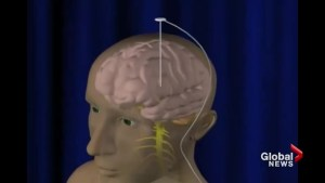 B.C. to expand access to deep brain stimulation for Parkinson's patients