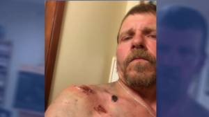 Man survives attack by mother grizzly bear