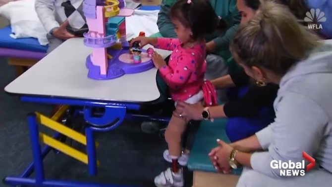 3-year-old Cuban girl who lost both legs to gangrene stands for first time with prosthetics
