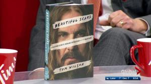 "Musician Tom Wilson delves into his storied past in his book ""Beautiful Scars"""