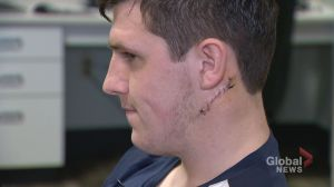 Nova Scotia hockey player has brush with death