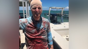 Shark bites South Carolina man in head while he was diving in Bahamas