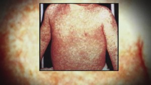 Confirmed cases of measles and whooping cough in B.C.