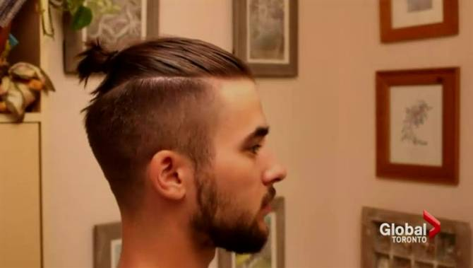Magnificent Man Bun39 Hairstyle Can Cause Baldness Doctor Toronto Hairstyles For Men Maxibearus
