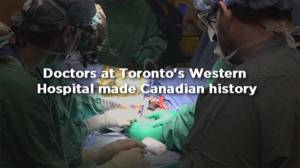 How doctors transplanted an upper limb at Western Hospital