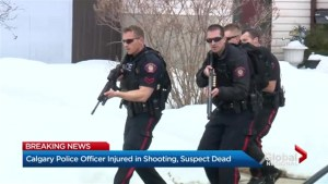 Calgary police officer injured in shooting, suspect dead
