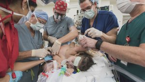 Conjoined twin girls separated after 26-hour marathon surgery