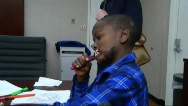 WATCH: Boy attacked by chimp to undergo rare facial surgery