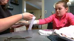 Viral homemade slime recipe gives 11-year-old girl 3rd-degree burns