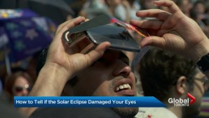 Did you view yesterday's eclipse without proper eye wear?