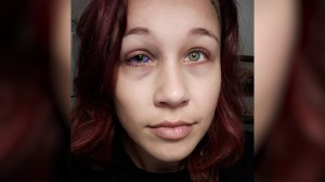Ottawa woman with botched eye tattoo says she's considered having eyeball removed
