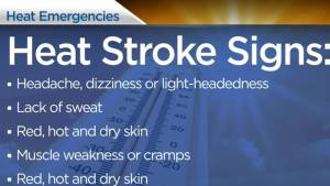 Health Matters: Signs and symptoms of heat stroke