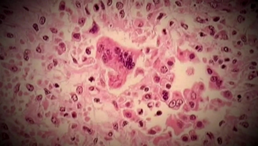 Fraser Health gives update on measles