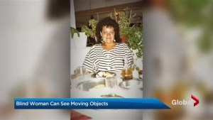 Blind woman can see things only in motion