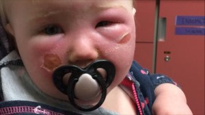 Health Canada investigating Banana Boat sunscreen after 3 complaints of babies burned by product