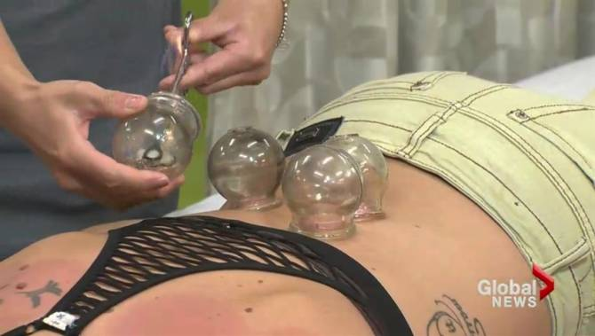 Gua Sha is the new 'cupping': What experts want you to know