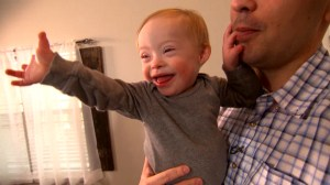 First Gerber baby with Down syndrome