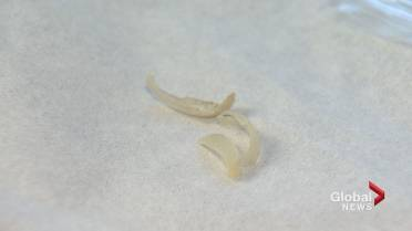 Atlantic Canadian researchers using toenail clippings in fight ...