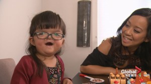 'Wonder girl' born with facial differences teaches life lessons