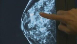 B.C. to begin breast density screening