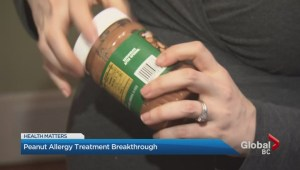 Peanut Allergy Treatment Breakthrough
