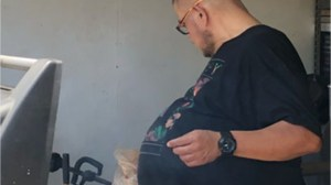 California man's 'beer belly' turns out to be 77-lb tumour
