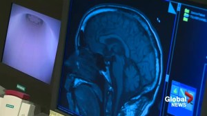 New Brunswick health agreement may lead to decrease in MRI wait times