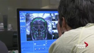 Brain surgery without breaking the skin a success at University of Calgary