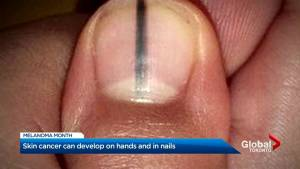 Skin cancer can develop on hands and around nails.