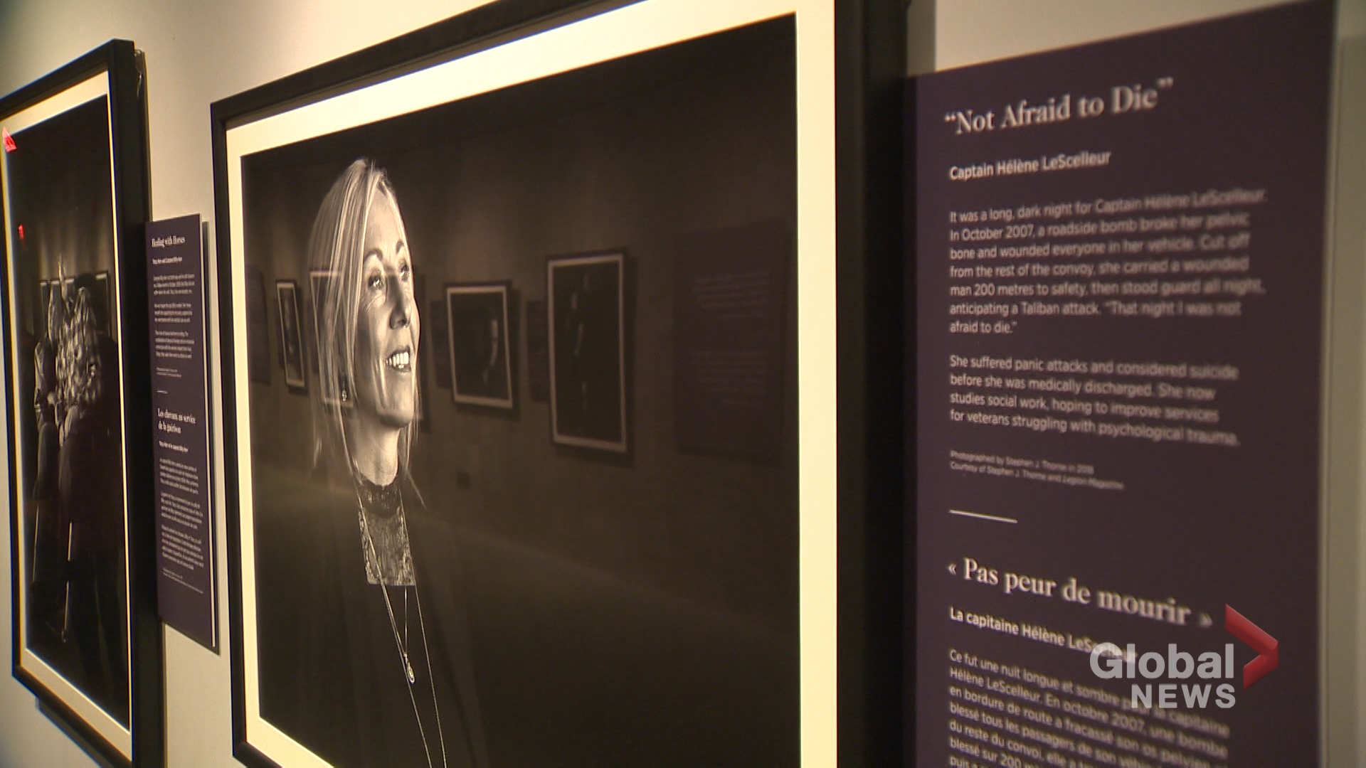 Canadian War Museum photography exhibit depicts price paid in war by soldiers
