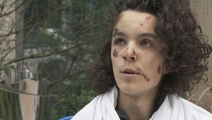 Exclusive: Cyclist injured in hit-and-run speaks out