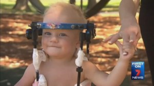 Australian baby's head reattached to severed spinal cord in 'miracle' surgery