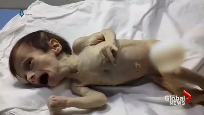 Starving Syrian newborn offers harrowing look at life in besieged region