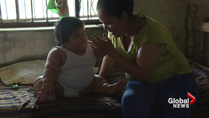 Mexican baby weighing 62 pounds confounds doctors