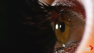 Woman infected with eye worm known only in cattle