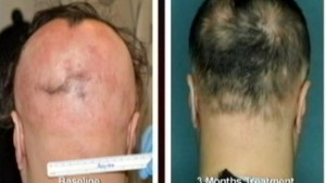 Class action suit alleges link between hair loss drugs and sexual health problems