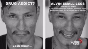 Lethbridge billboard campaign hopes to spark conversation about racism