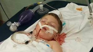 Pit bull attack leaves child with serious injuries