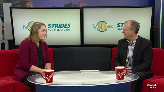 Strides for Melanoma to battle skin cancer in Canada