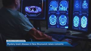 Neurologist explains mysterious brain disease emerging in New Brunswick (04:03)