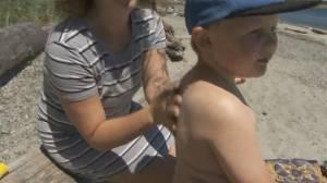 Health Matters: Childhood sun exposure (03:22)