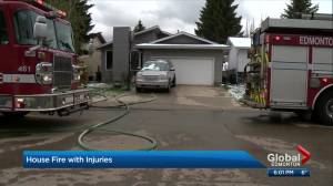 Mill Woods house fire leaves dad in critical condition, 5 kids sent to the Stollery (02:26)