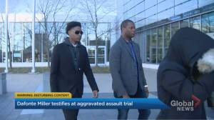 Victim of alleged  violent attack by Toronto officer and his brother testifies