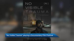 'No Visible Trauma' is one of 21 films playing at the CUFF.Docs Documentary Film Festival (06:50)