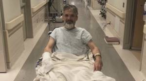 Severely burned man gives back to Calgary Firefighters Burn Treatment Society
