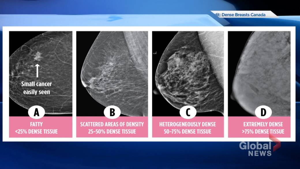 Nova Scotia First Province To Include Breast Density Results In