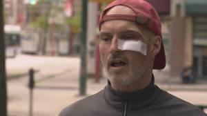 Chinatown business owner hurt during random attack