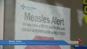Measles immunity history