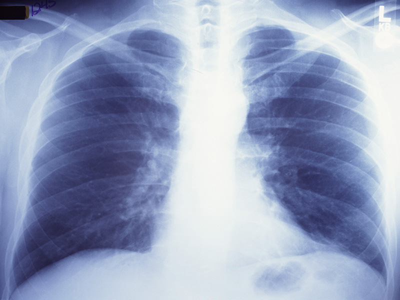 News Picture: Local Smoke-Free Laws Tied to Fewer Lung Cancer Cases